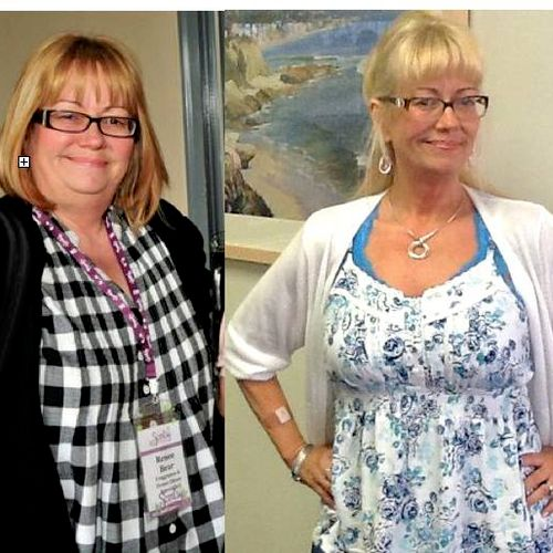 Renee lost 70 pounds - people who hadn't seen her in a while didn't recognize her!