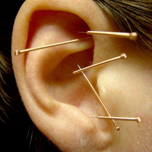 Acupuncture Detoxification Protocol