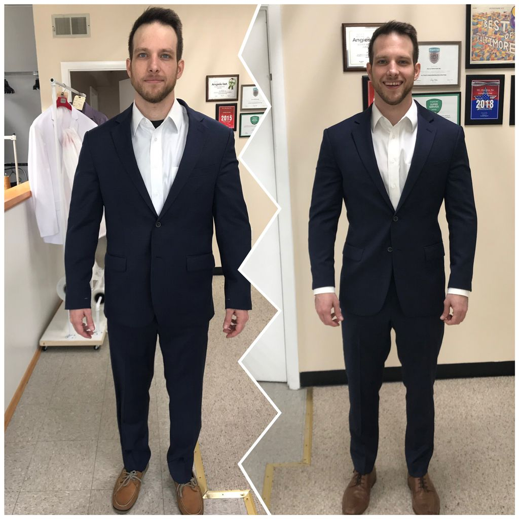Total suit reconstraction