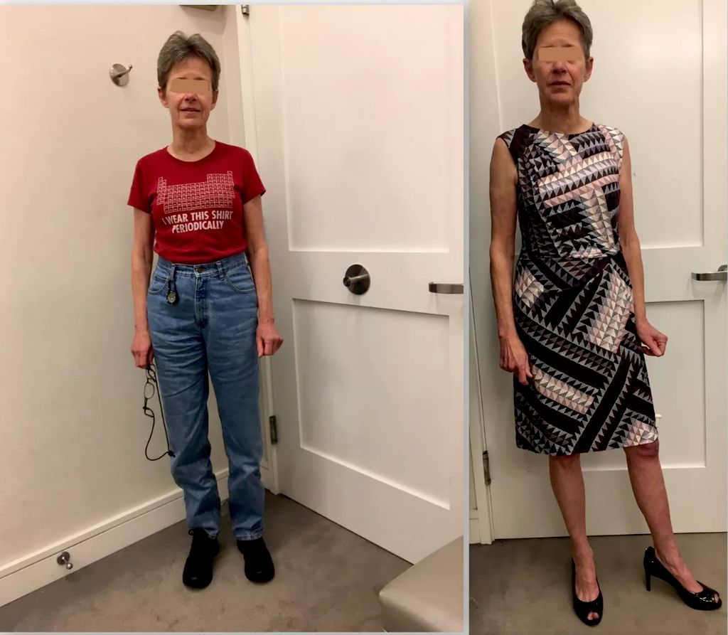 BEFORE AND AFTER In the Dressing Room