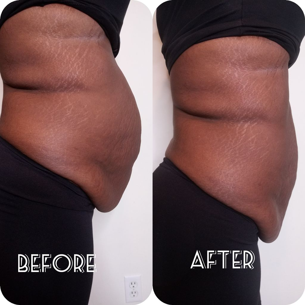 Fat Removal & Toning sessions Sessions