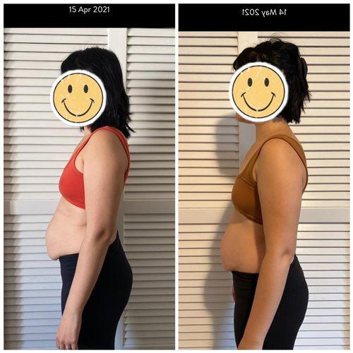 Diastis recti 1 month correction