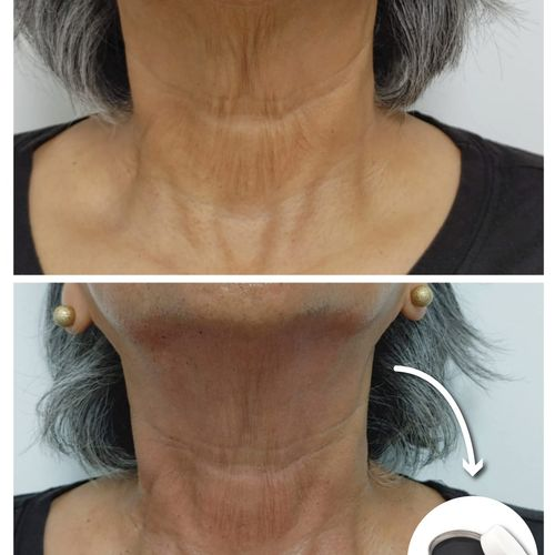 This is a neck treatment with topical application of blue copper peptides and personalized formulation
