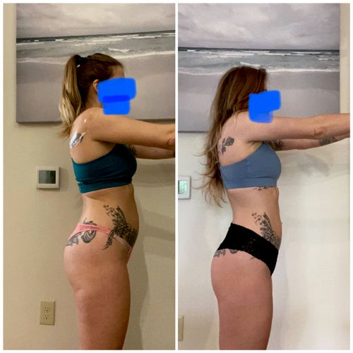Before and After reduce bloating and slim down